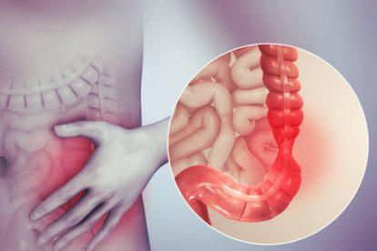 sindrome colon irritabile ibs img