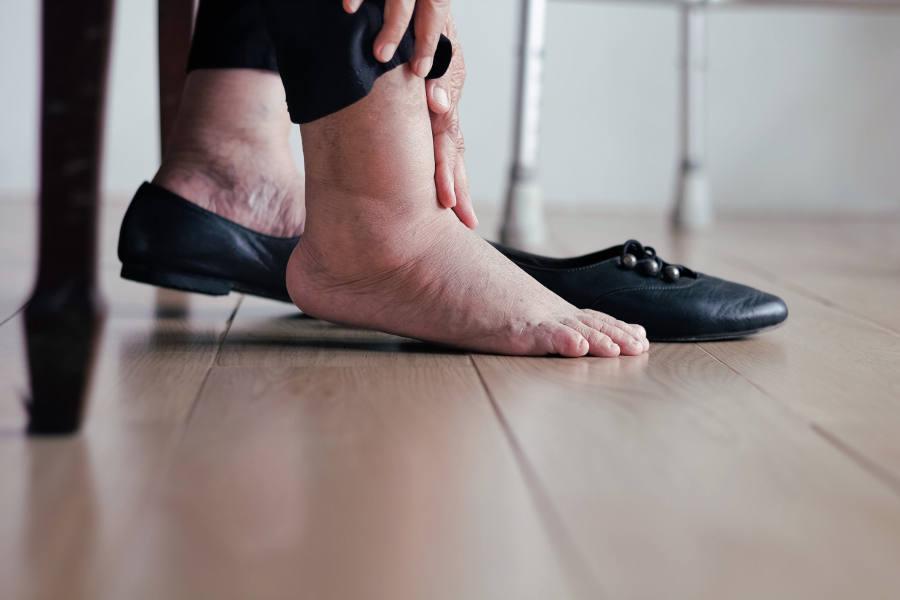 piedi gonfi img